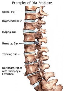 Image showing lumbar disc  wear and tear